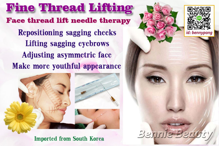 Thread Lift – a minimally invasive rejuvenation technique