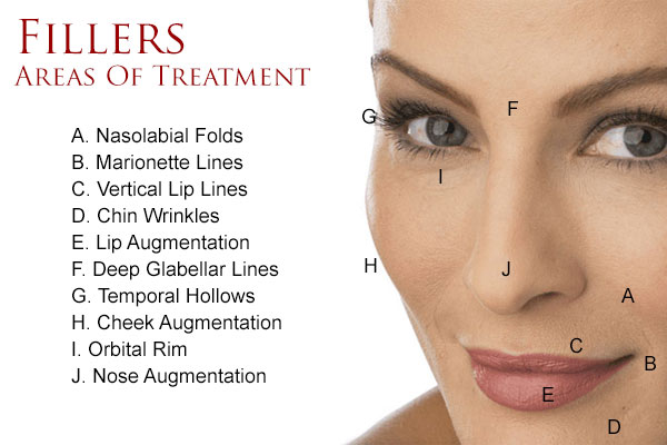 Dermal-Fillers_Treatment-Areas1