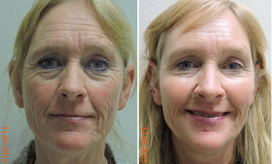 Voluma-Juvederm-Botox-before-after