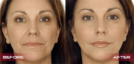 dermal-fillers-full-face-2