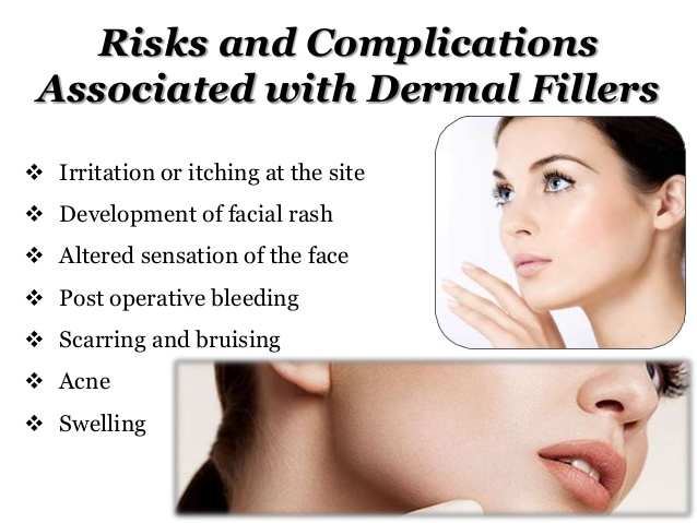 dermal-fillers-in-melbourne-4-638
